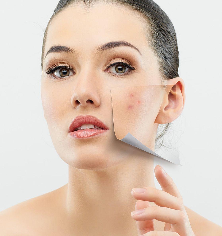 ABC skóry trądzikowej, czyli najczęściej popełniane błędy