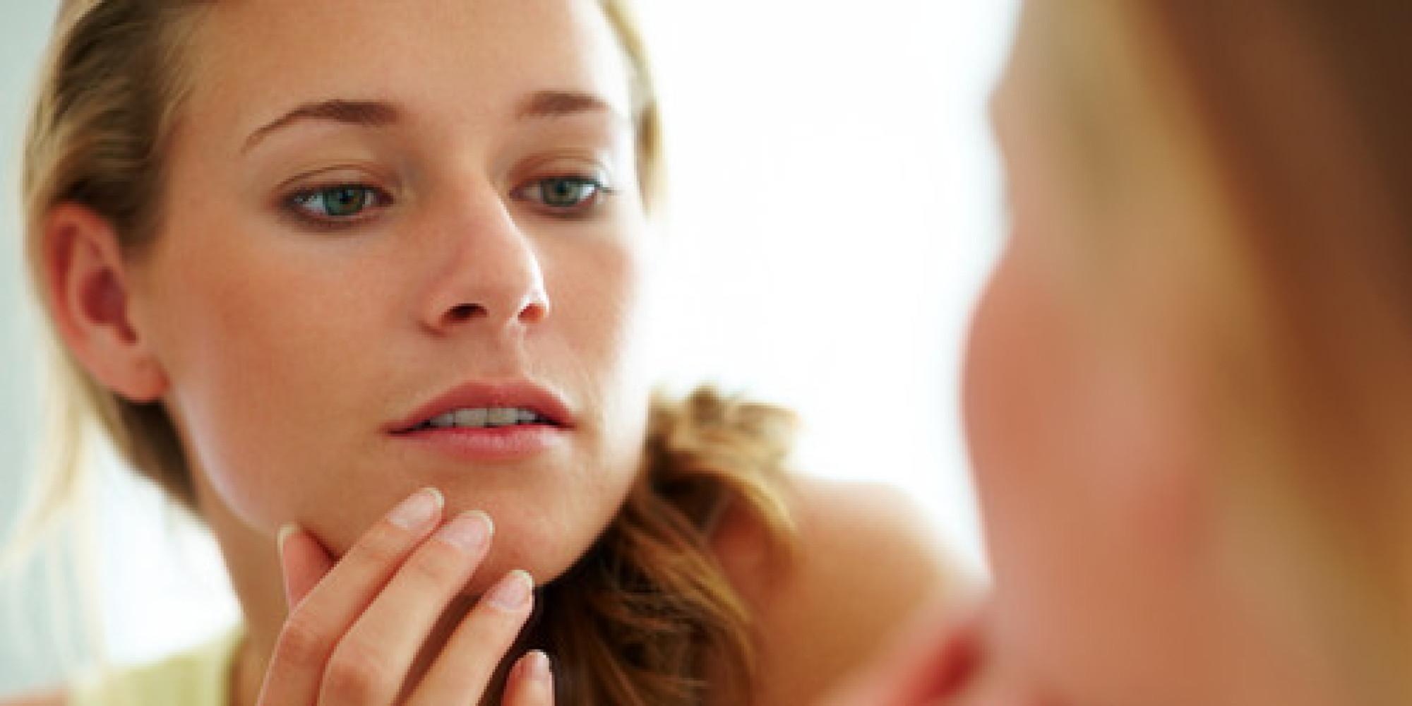 5 oznak trądziku hormonalnego