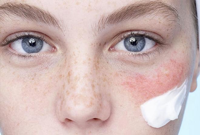 Wrażliwa, reaktywna, atopowa, czy naczyniowa – jaka jest Twoja skóra?
