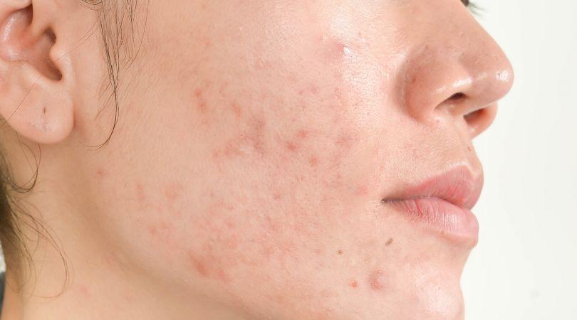Co w codziennej pielęgnacji pogarsza stan skóry trądzikowej?