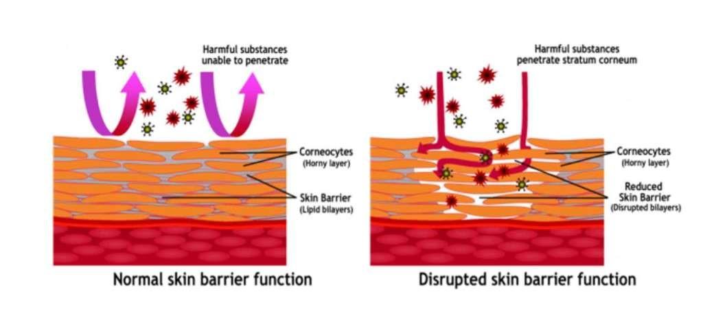 budowa skóry